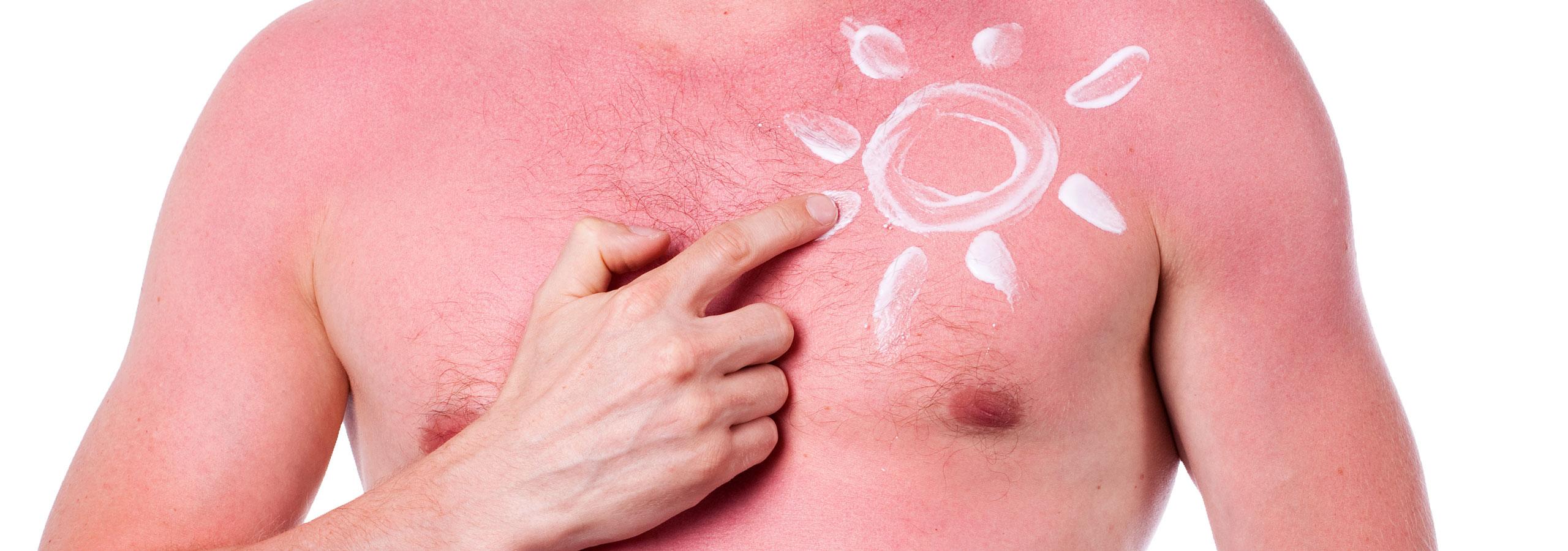 Sonnenbrand auf dem Oberkörper eines Mannes.