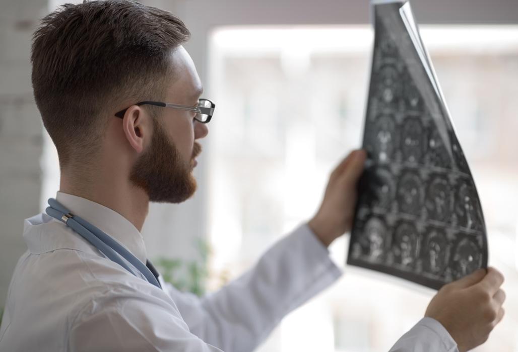 Arzt betrachtet ein MRT des Gehirns