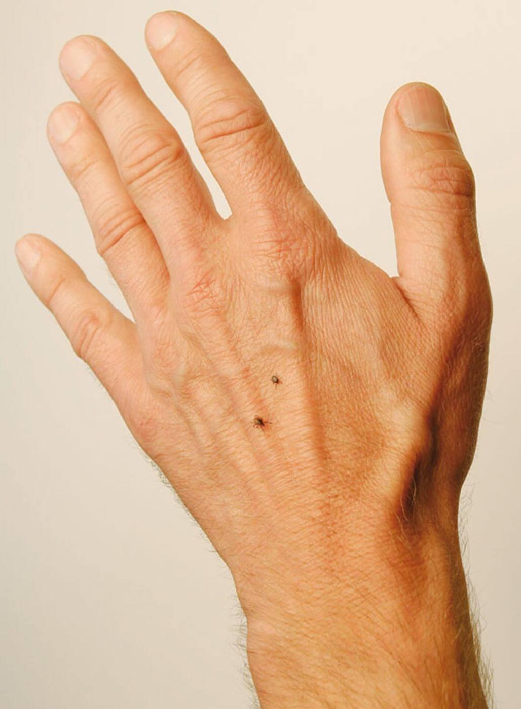 Zwei Zecken auf einer Männerhand
