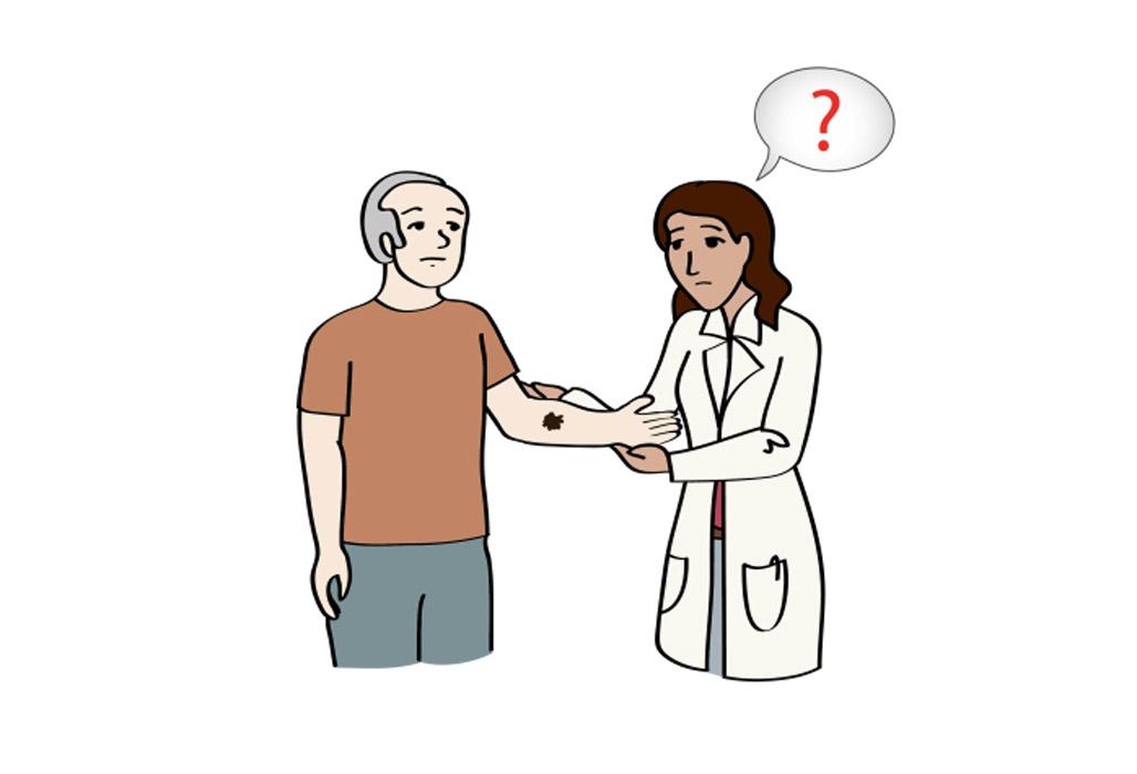 Mann lässt ein Mutter-Mal von einer Haut-Ärztin untersuchen
